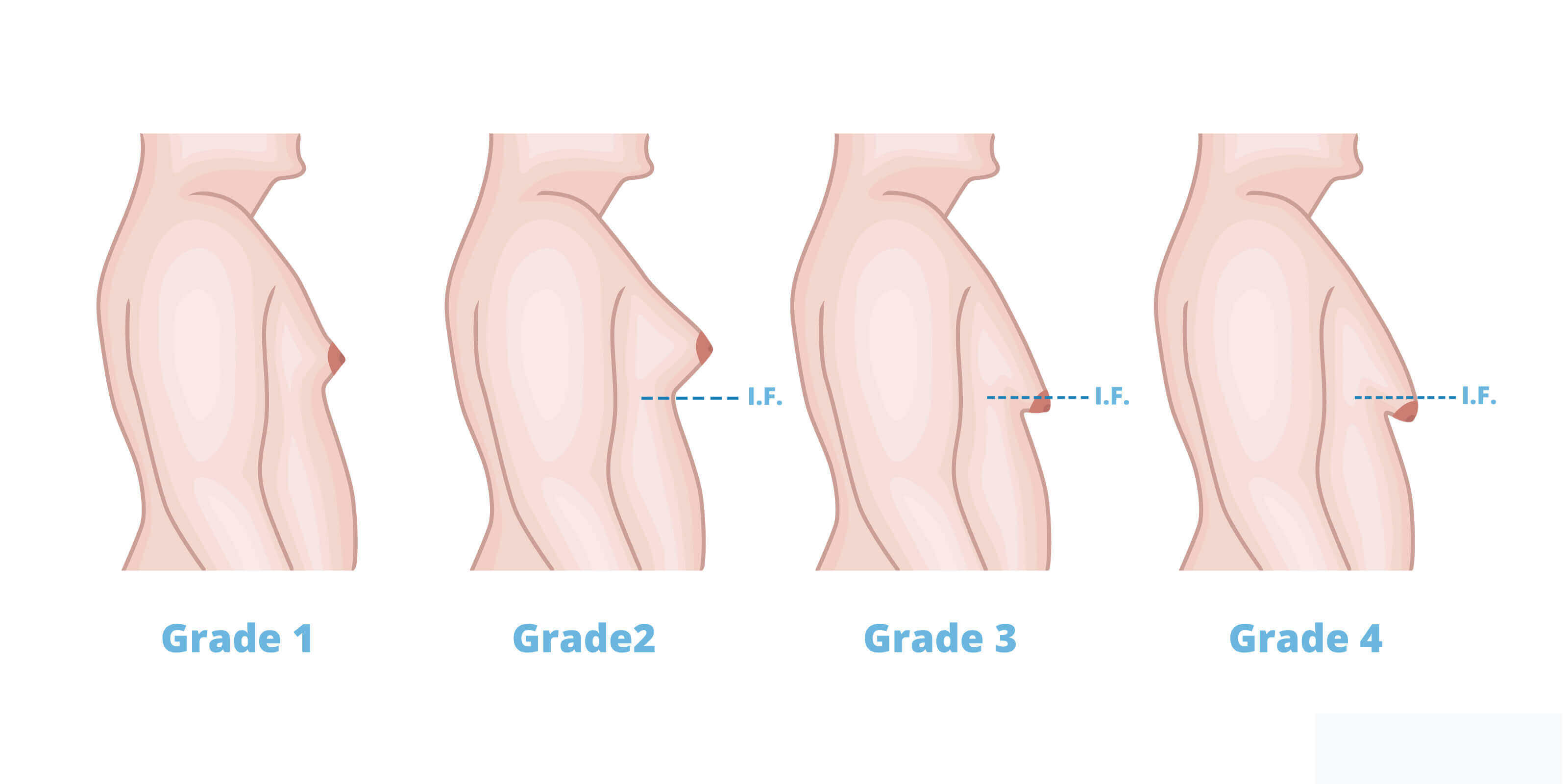 Image result for gynaecomastia